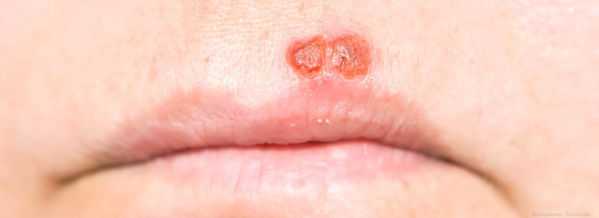 Herpes wann weg mund geht im Mundfäule: Symptome